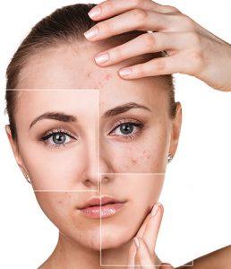 acne trat